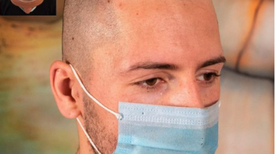 Will Scalp Micropigmentation Work For Me?